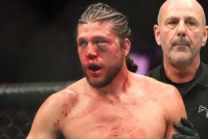 UFC's Brian Ortega Gets Pins Yanked Out of Broken Thumb In Disgusting Video