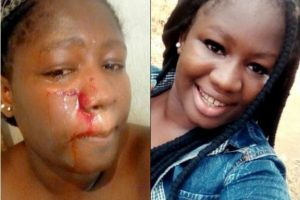 Lady Gets Beaten Black And Blue On Valentine's Day And Here's Why. (Photos)