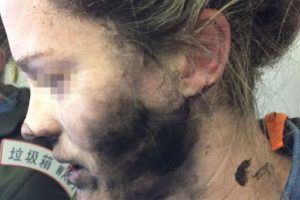 Photos: Woman suffers burns to her face and hands after her headphones caught fire during flight