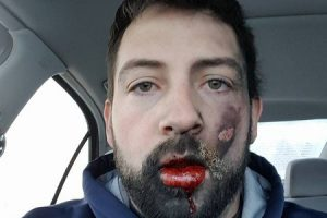 See How this Man's Face Got Blown Up After His E-Cigarette Exploded While He Was Smoking It (Photos)
