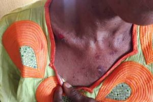 Mobil Petrol Station Attendants In Akure Beat Woman To A Pulp For 'Parking Without Permission'