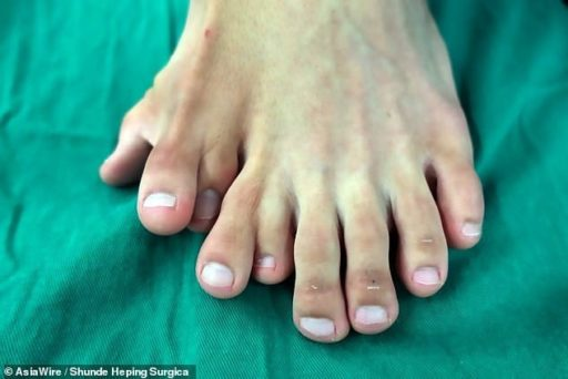 Chinese Man Born with Nine Toes